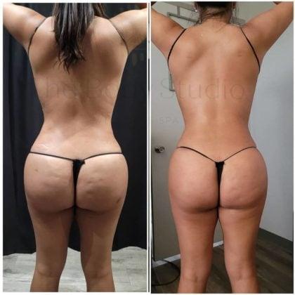 Skin Tightening Procedures