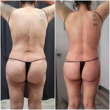 Procedures for Skin Tightening