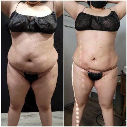 Non-invasive Body Procedures
