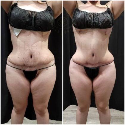 Non Invasive Bodysculpting