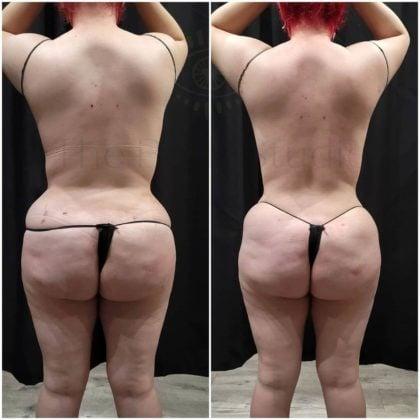 non invasive butt lift