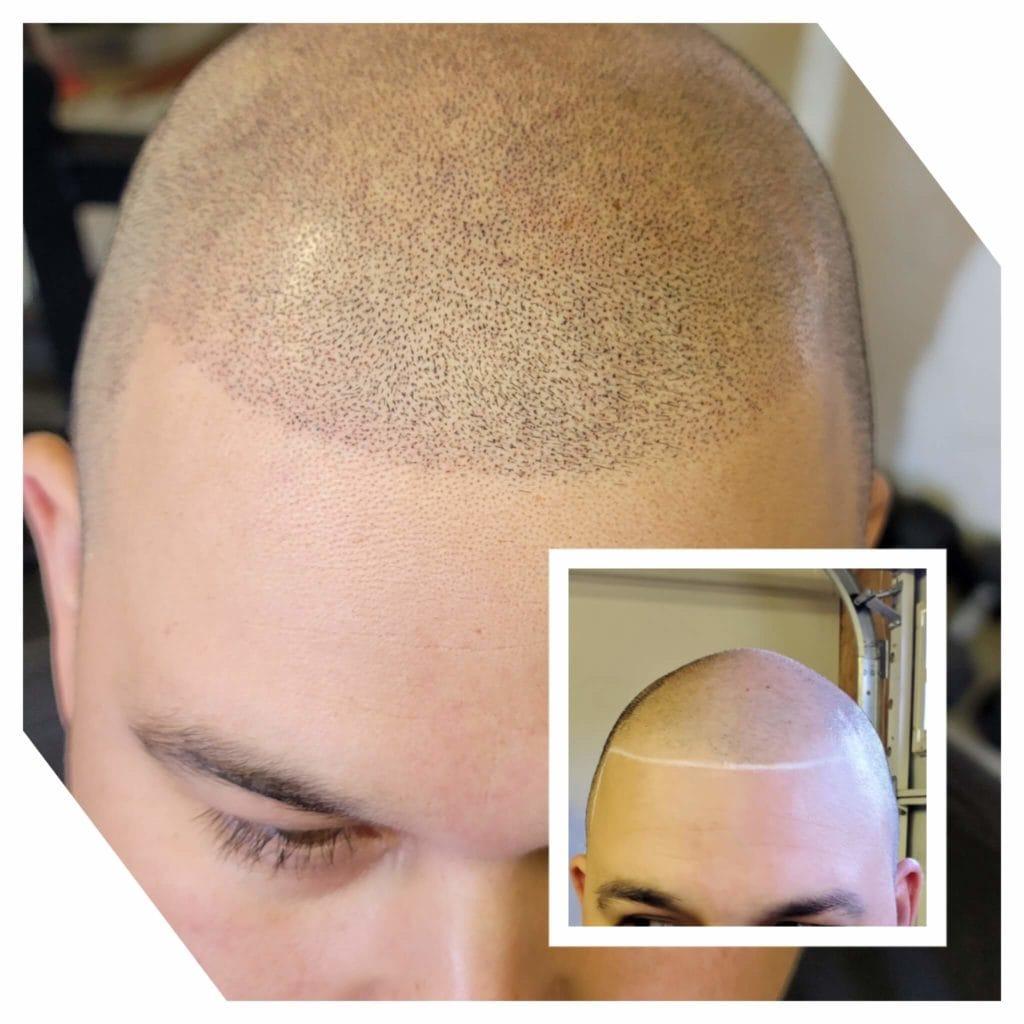 Scalp Micropigmentation (1)
